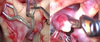 Cerebral aneurysm clipping